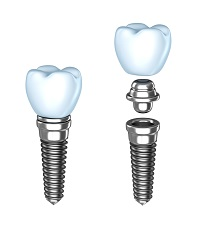 Dental Implants in Pasadena, CA | Jerry A. Johnson, D.D.S.